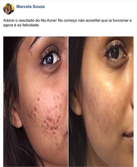 No Acne antes e depois