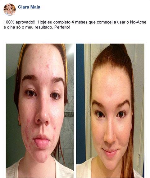 No Acne funciona