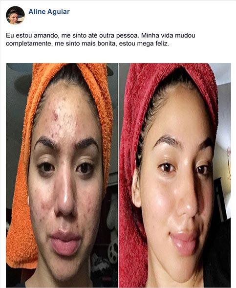 No-Acne antes e depois